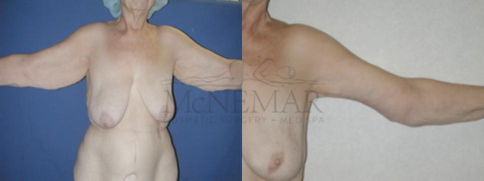 Brachioplasty (Arm Lift) Case 54 Before & After View #1 | San Ramon & Tracy, CA | McNemar Cosmetic Surgery