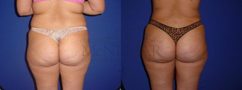 Brazilian Butt Lift (BBL) Case 109 Before & After View #1 | San Ramon & Tracy, CA | McNemar Cosmetic Surgery