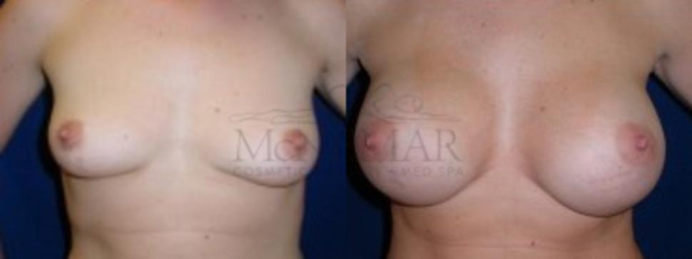 Breast Augmentation Case 1 Before & After View #1 | San Ramon & Tracy, CA | McNemar Cosmetic Surgery