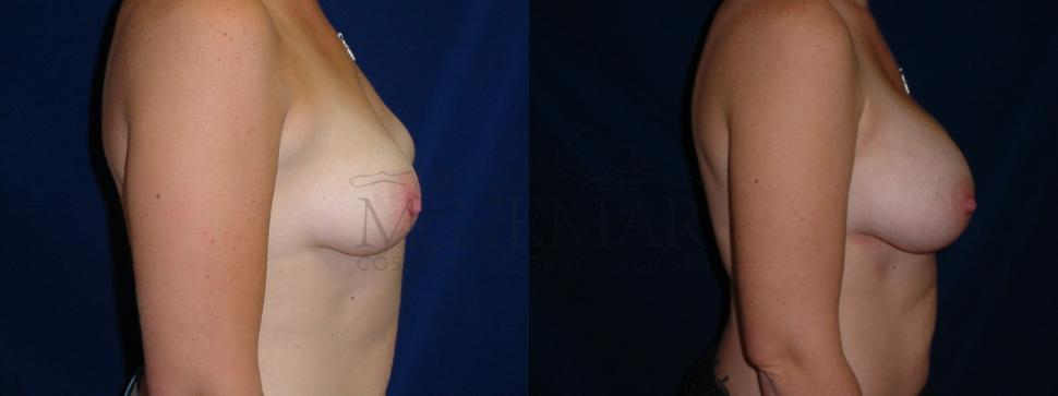 Breast Augmentation Case 27 Before & After View #1 | San Ramon & Tracy, CA | McNemar Cosmetic Surgery