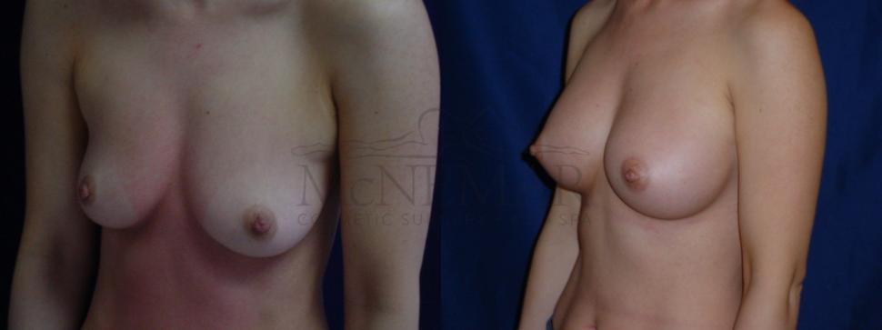 Breast Augmentation Case 31 Before & After View #1 | San Ramon & Tracy, CA | McNemar Cosmetic Surgery