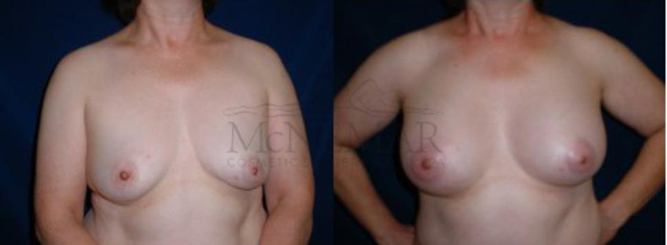 Breast Augmentation Case 5 Before & After View #1 | San Ramon & Tracy, CA | McNemar Cosmetic Surgery