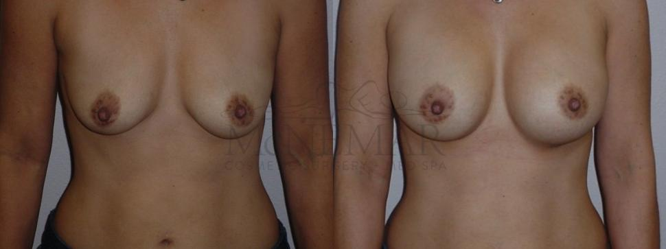 Breast Augmentation Case 76 Before & After View #1 | San Ramon & Tracy, CA | McNemar Cosmetic Surgery