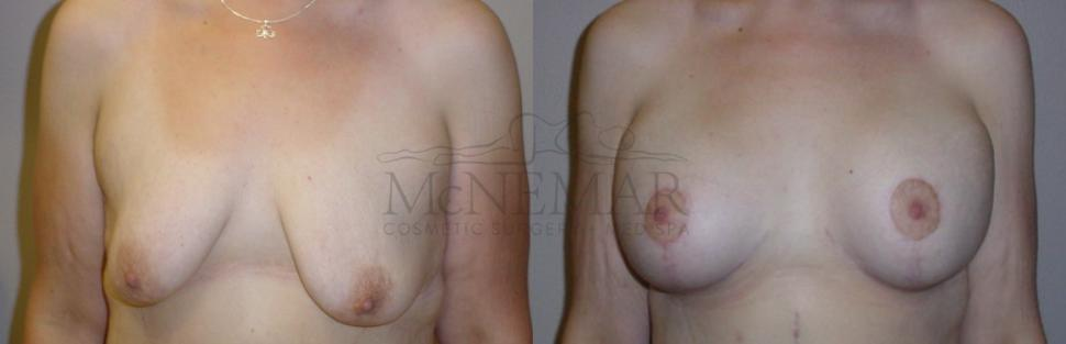Breast Lift (Mastopexy) Case 106 Before & After View #1 | San Ramon & Tracy, CA | McNemar Cosmetic Surgery