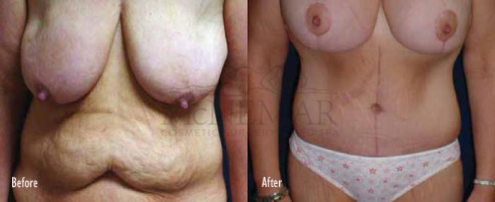 Breast Lift (Mastopexy) Case 40 Before & After View #1 | San Ramon & Tracy, CA | McNemar Cosmetic Surgery