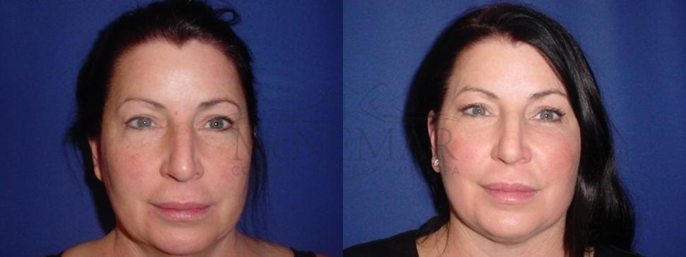Facelift Case 117 Before & After Front | San Ramon & Tracy, CA | McNemar Cosmetic Surgery